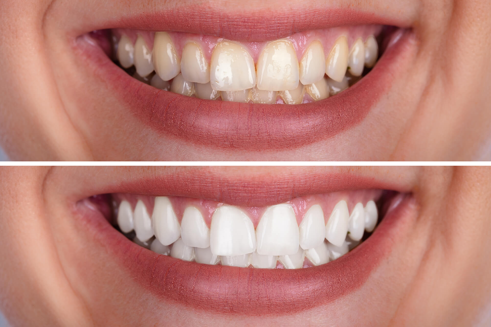 before and after teeth color